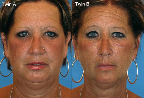 через сколько кожа становится лучше после отказа от курения